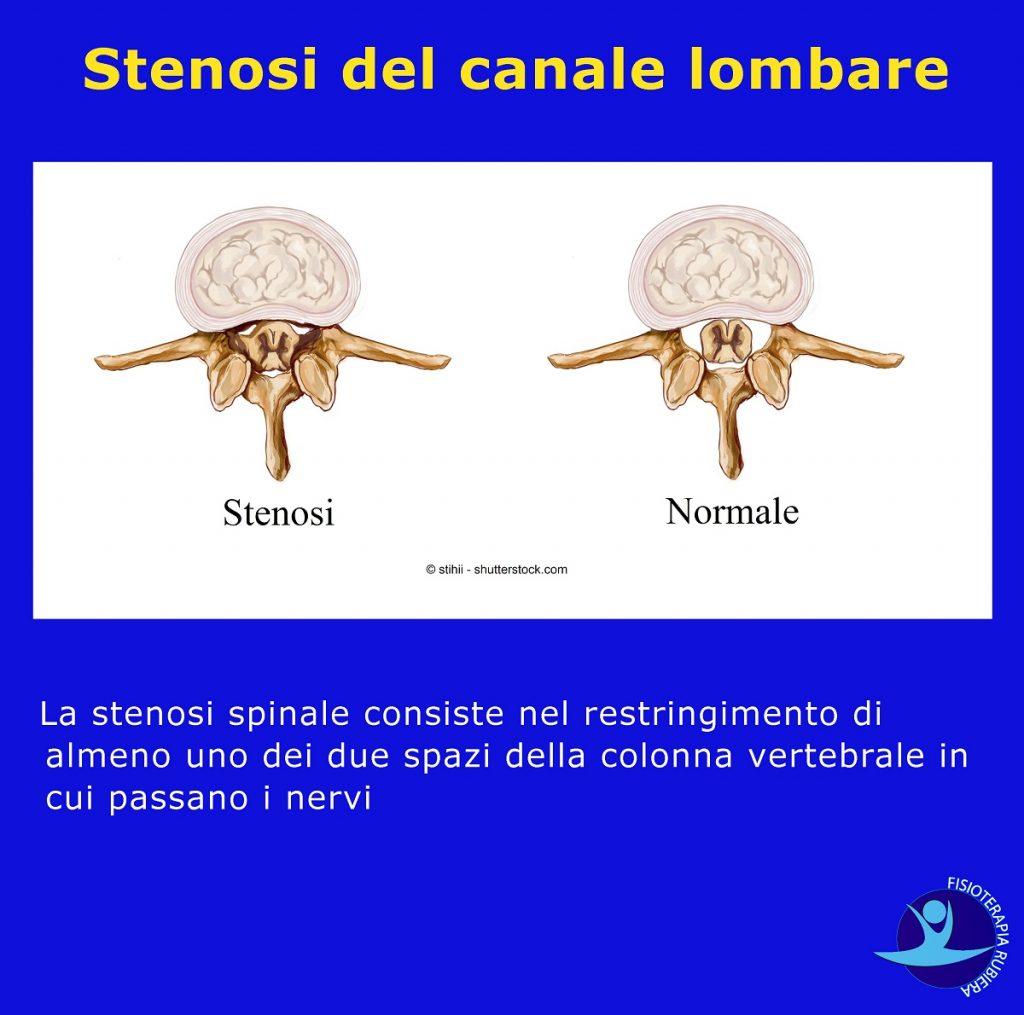 Stenosi-del-canale-lombare
