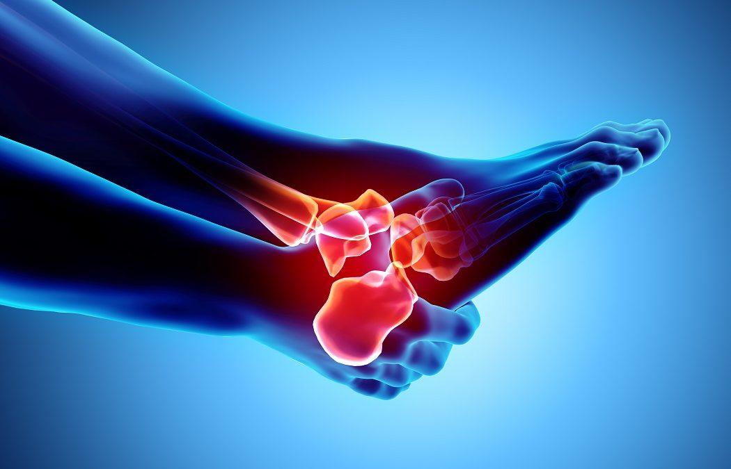 Terapia e i rimedi per la tendinite dei peronei