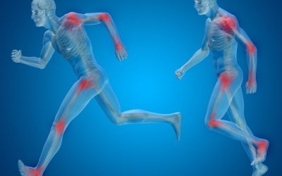 Fisioterapia per l'Artrosi