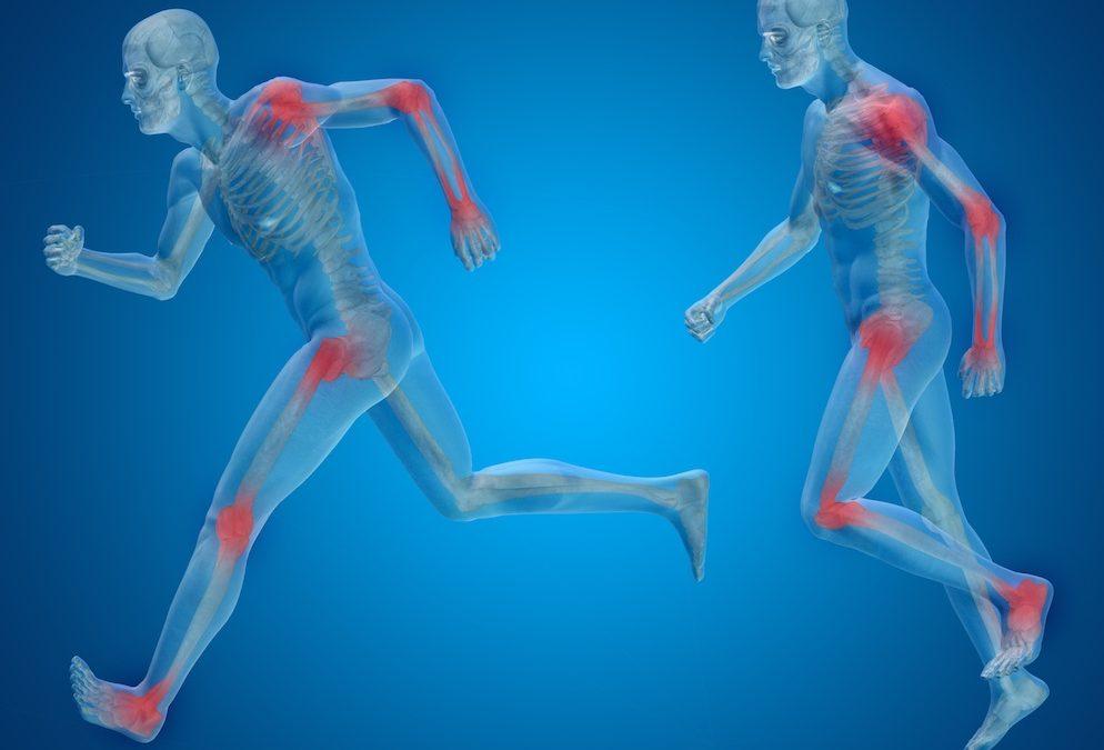 Terapia per l'Artrosi: la Guida Definitiva