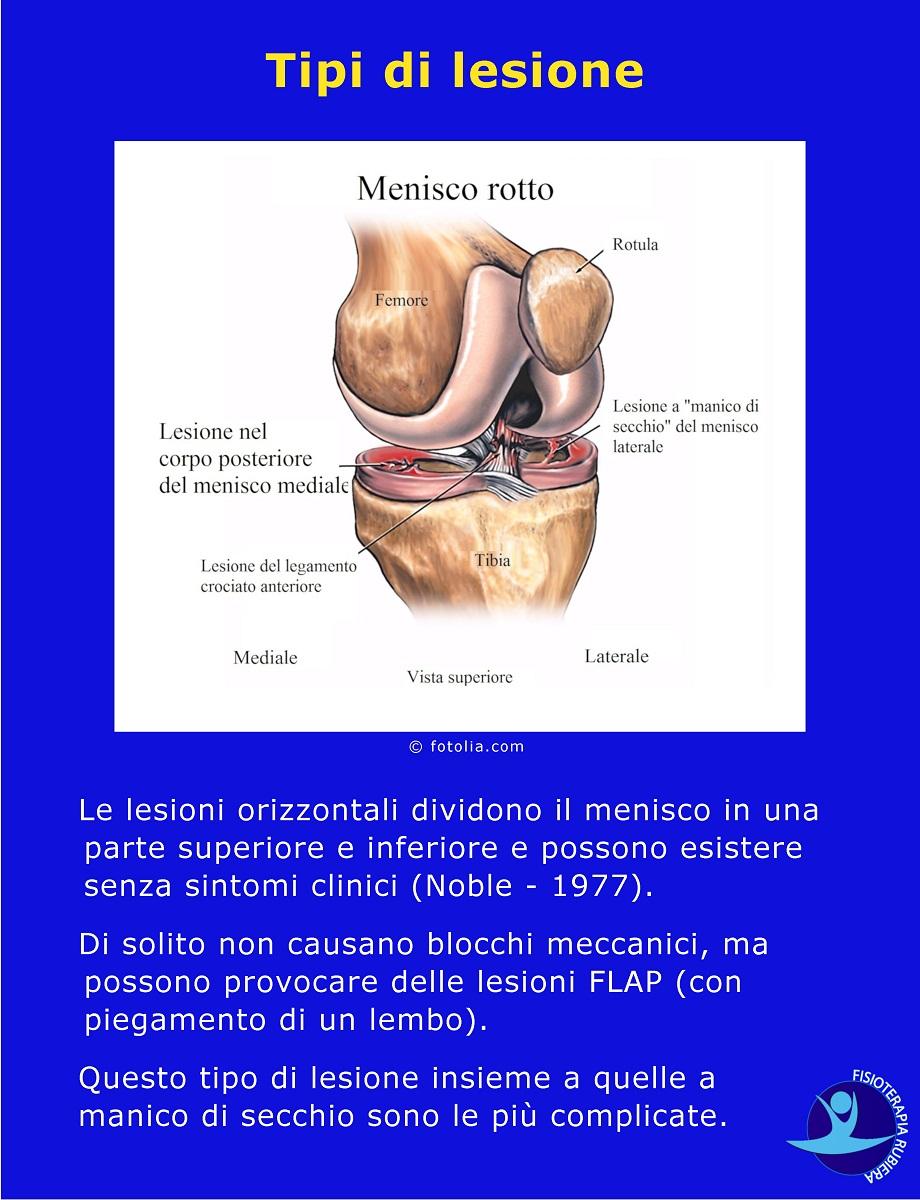 Tipi di lesione al menisco
