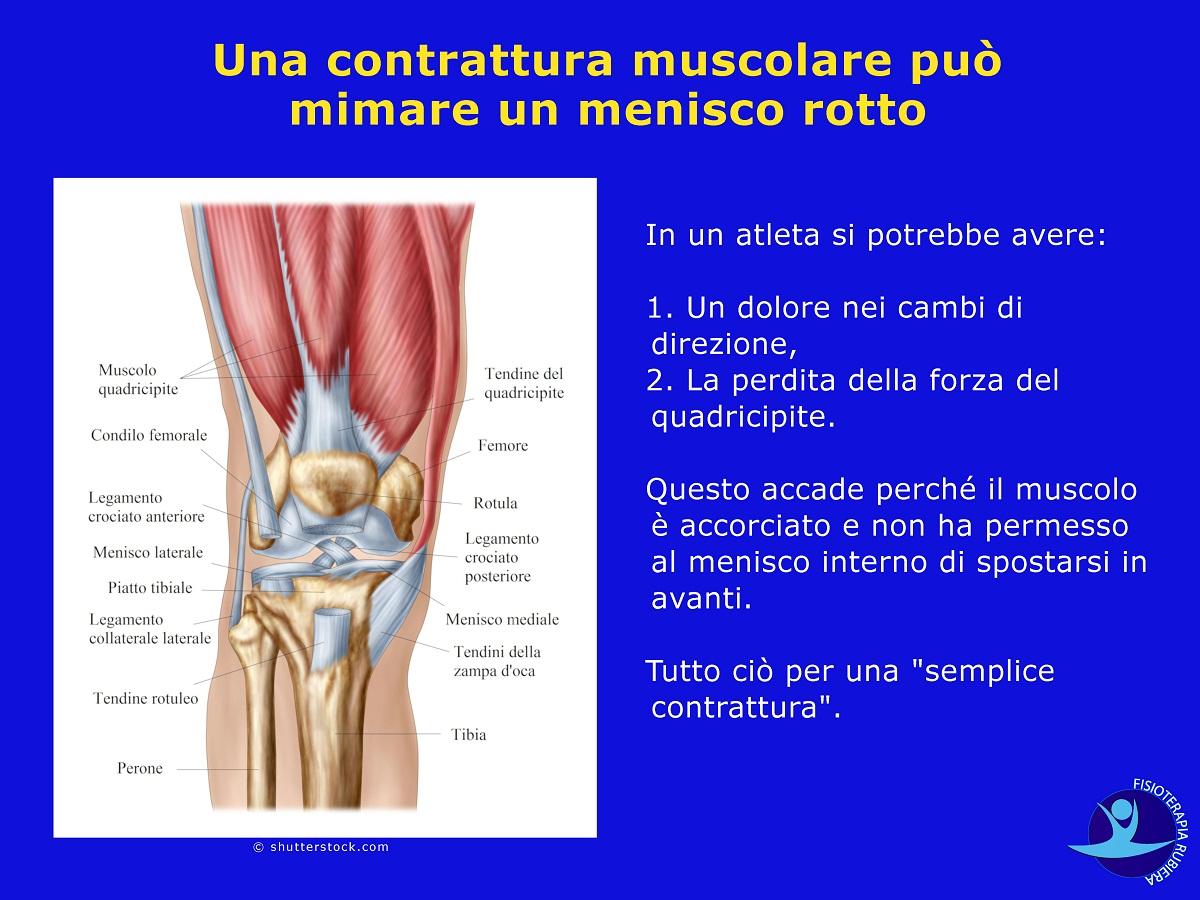 contrattura-muscolare-può-mimare-un-menisco-rotto