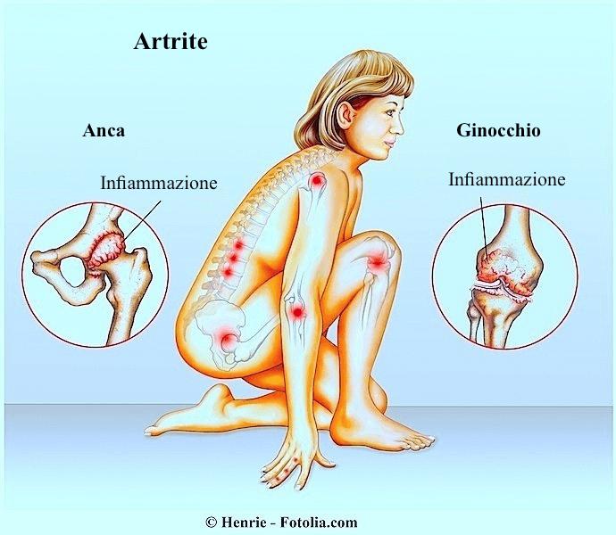 articolazioni,infiammazione,diverse,multiple,dolore,male,limitazione,funzionale,artrite