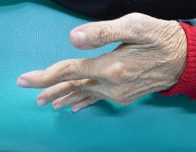 Dita a collo di cigno,artrite reumatoide,deformità