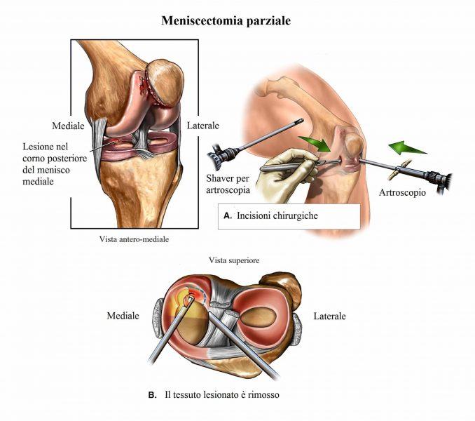 Artroscopia di ginocchio,menisco,meniscectomia,mediale