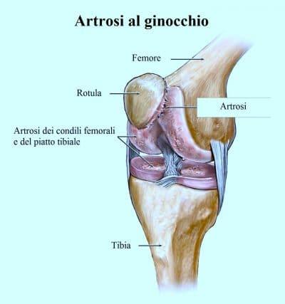 Artrosi al ginocchio,femore,rotula,tibia