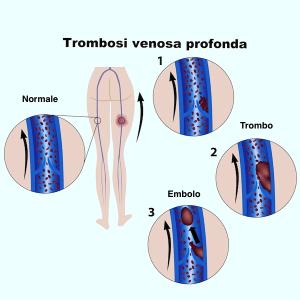 trombosi,venosa,profonda,embolo,intervento,immobilizzazione,protesi
