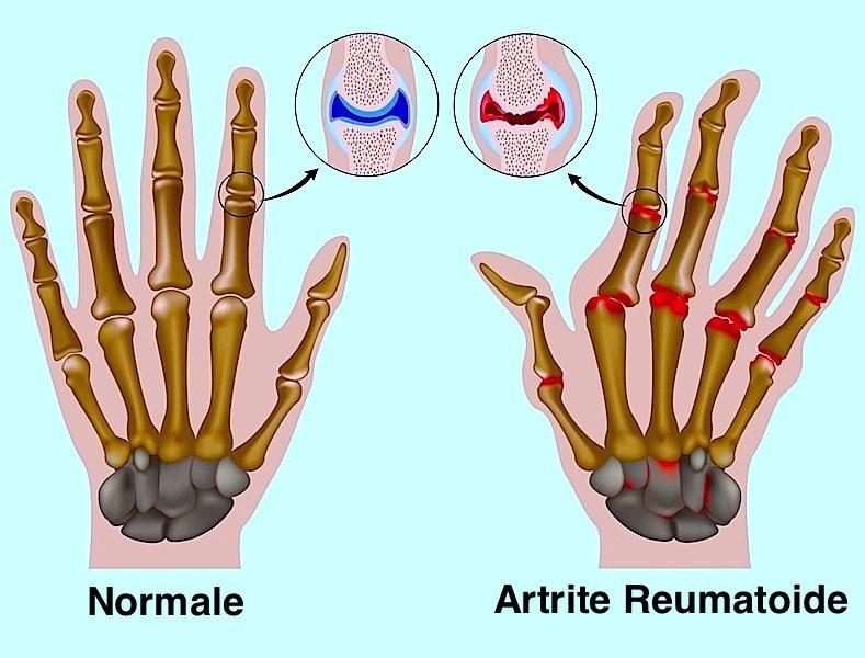 erosione,articolazioni,dita,mano,deformazione,mutilazione,reumatoide