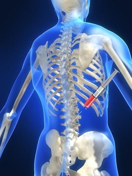 Infiltrazioni,epidurali,dolore,cortisone,farmaci,medicine,fans,anti,infiammatori