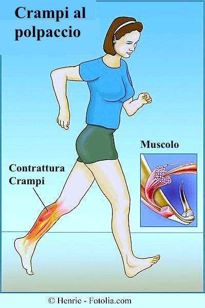 crampi muscolari alle gambe sintomi e terapia