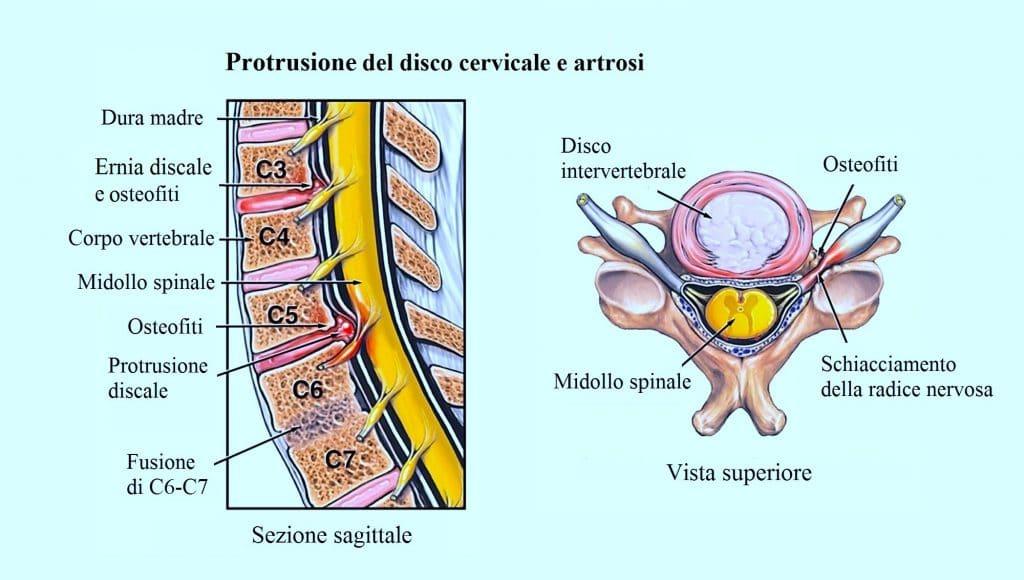 Artrosi alla colonna vertebrale,cervicale,osteofiti