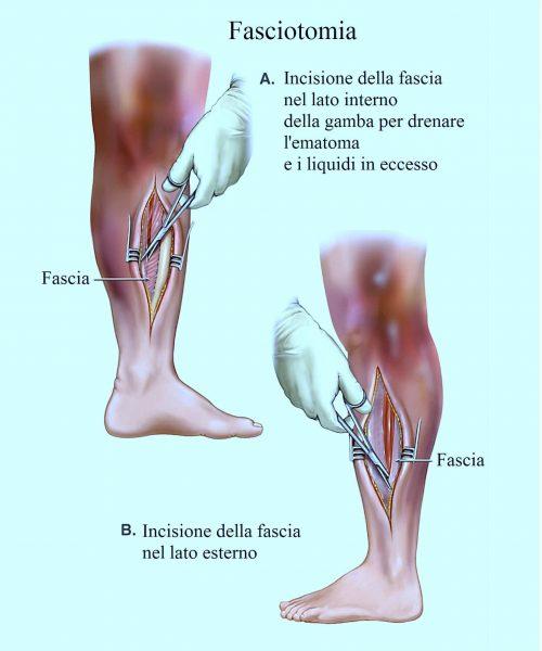 Sindrome compartimentale,fasciotomia
