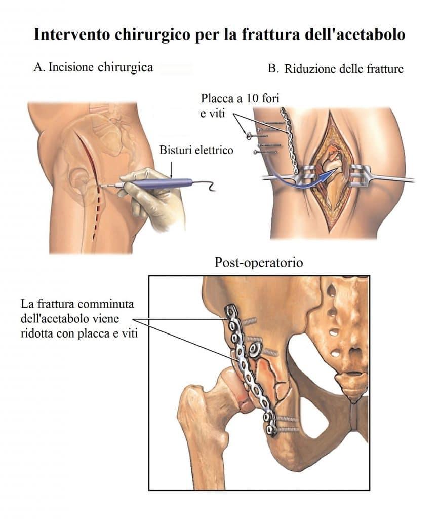 Frattura del bacino,intervento chirurgico,terapia,placca,viti