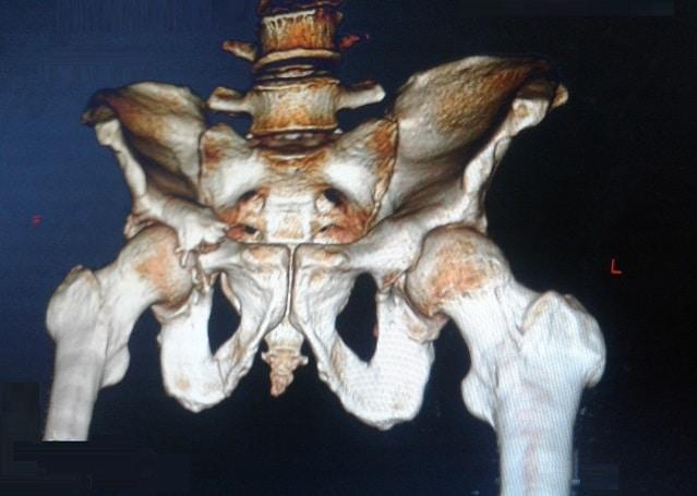 Frattura del bacino,acetabolo,tac,destro