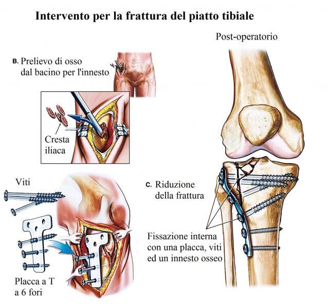 Intervento per la frattura al ginocchio,viti,placche