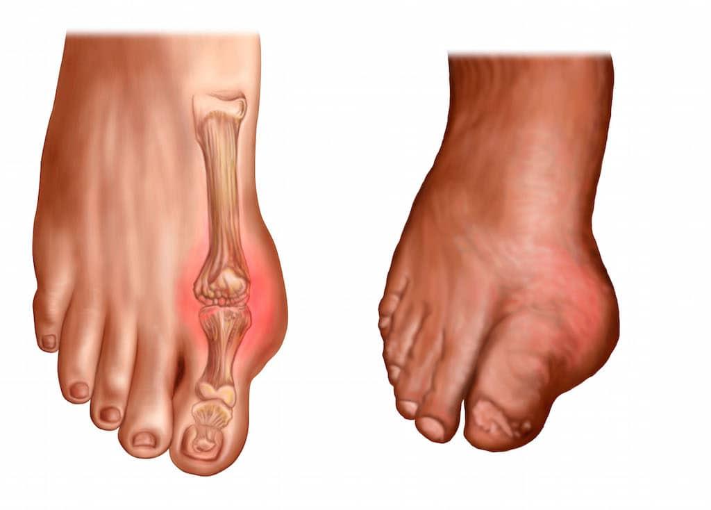 dolore al piede lato esterno o interno al tallone cause