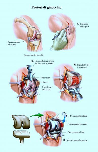 Operazione chirurgica di protesi di ginocchio