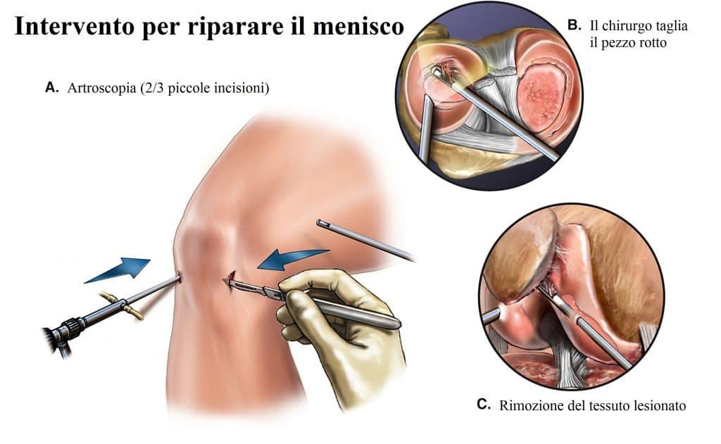 Meniscectomia,intervento chirurgico,lesione del menisco