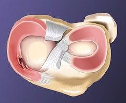 lesione,orizzontale,menisco,male,dolore,infiammazione,profonda,interno,chirurgo,infortunio