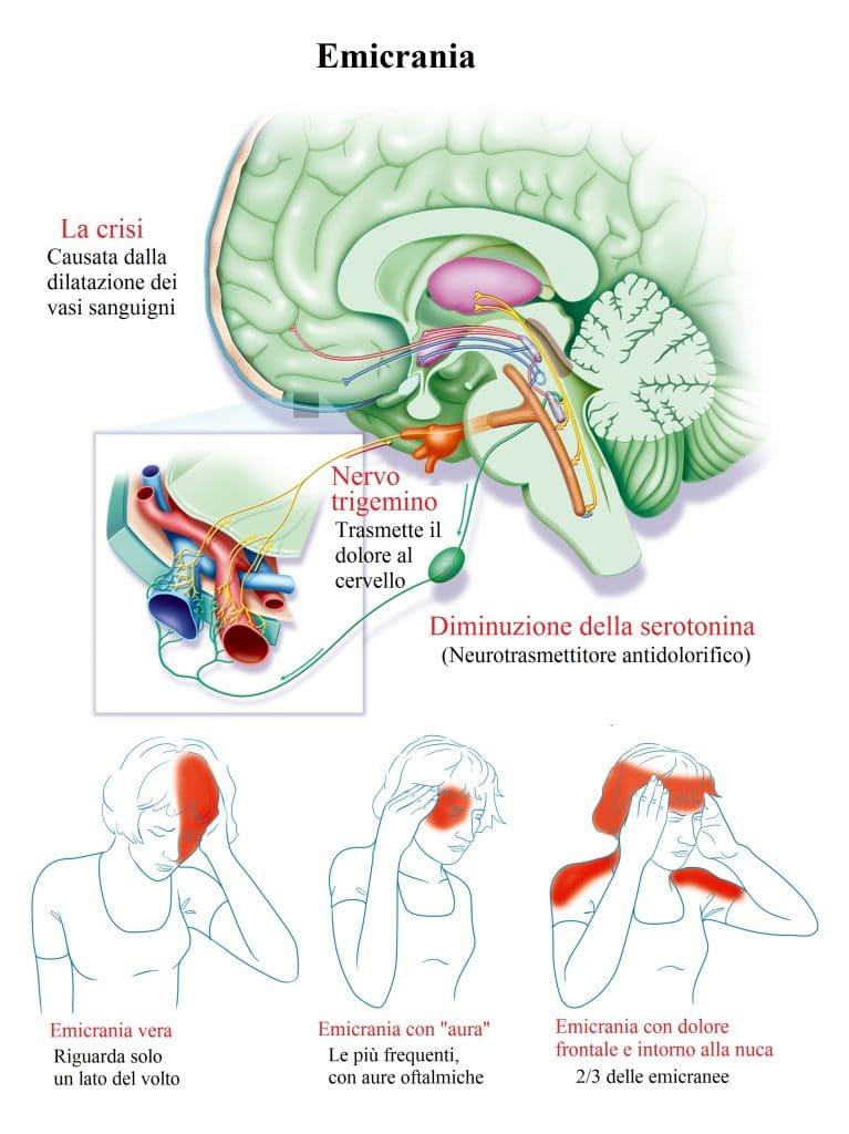 Emicrania,mal di testa