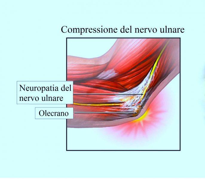 Neuropatia del nervo ulnare,infiammazione