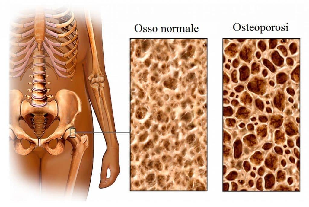 Osteoporosi,anca,femore