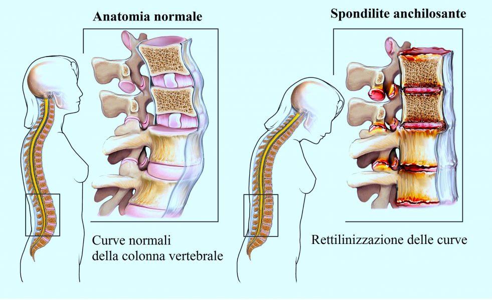 Spondilite anchilosante,mal di schiena