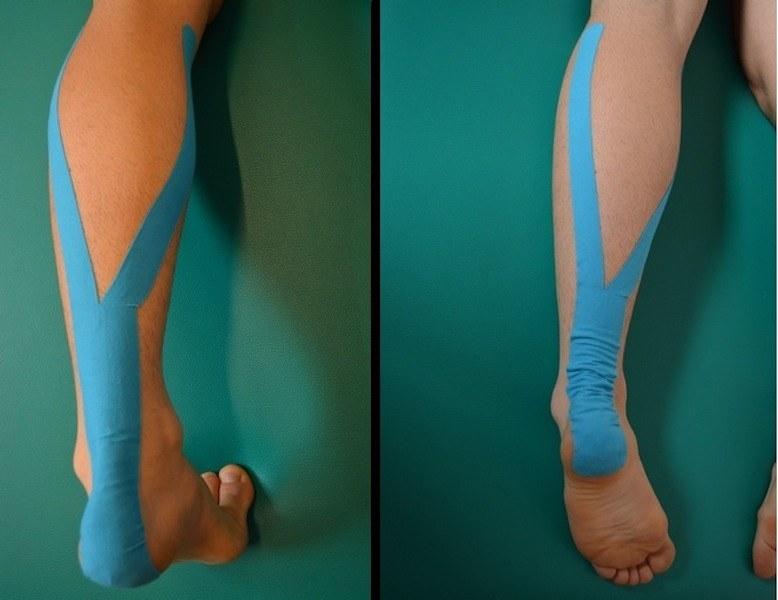 kinesio,taping,polpaccio,gastrocnemio,contrattura,lesione,dolore,infiammazione