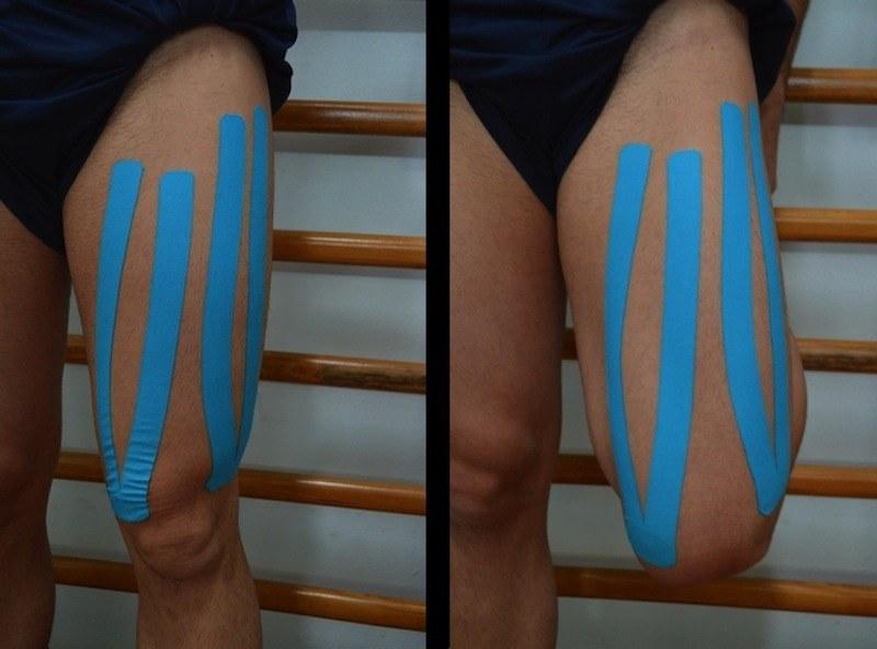 kinesio,taping,contrattura,crampo,lesione,quadricipite
