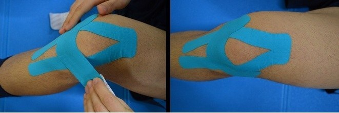 kinesio,taping,tendinite,ginocchio,dolore,male,grinza