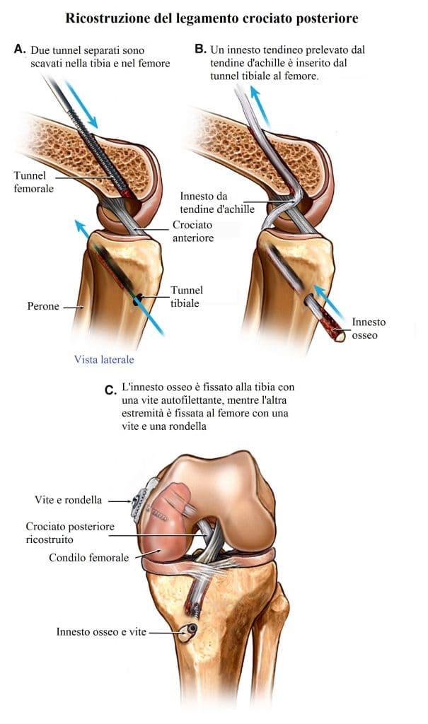 Lesione del crociato posteriore,ginocchio,intervento chirurgico