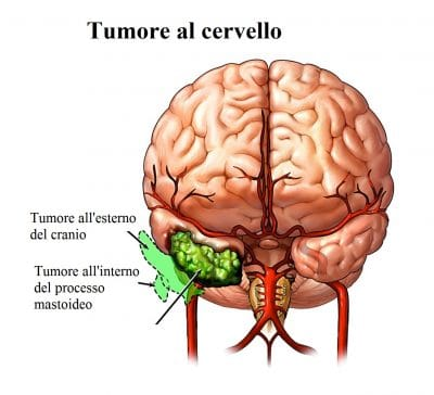 Tumore al cervello,metastasi,tremore