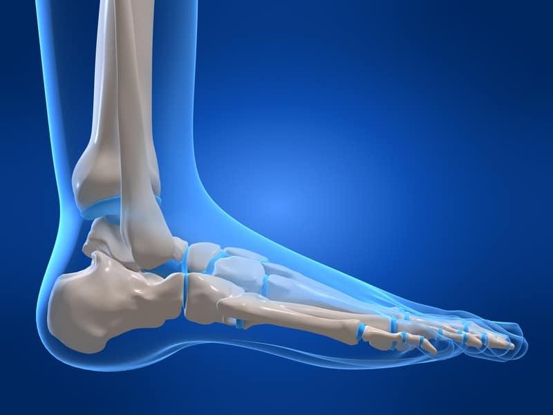 La frattura da avulsione è spesso trascurata (non curata) quando si ...