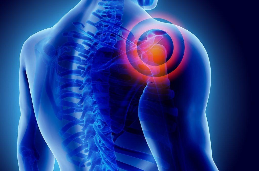 Capsulite adesiva della spalla: terapia e rimedi naturali