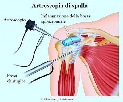 Capsulite adesiva della spalla