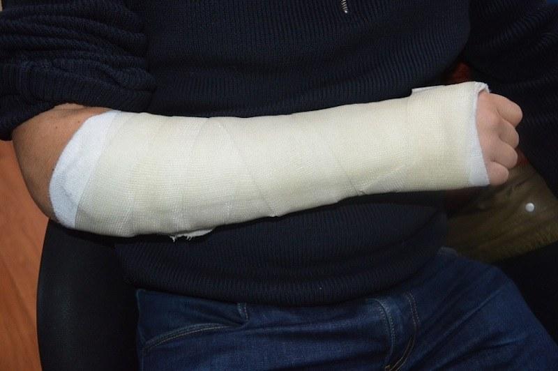 Come guarire un fungo su unghie di gambe di medicina