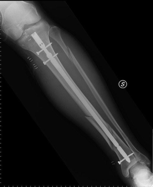 chiodo,endomidollare,viti,tibia,diafisi,frattura,radiografia,dolor,lesione