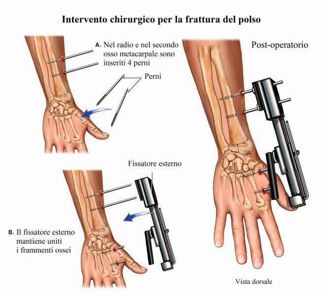 Intervento chirurgico,frattura polso,fissatore esterno