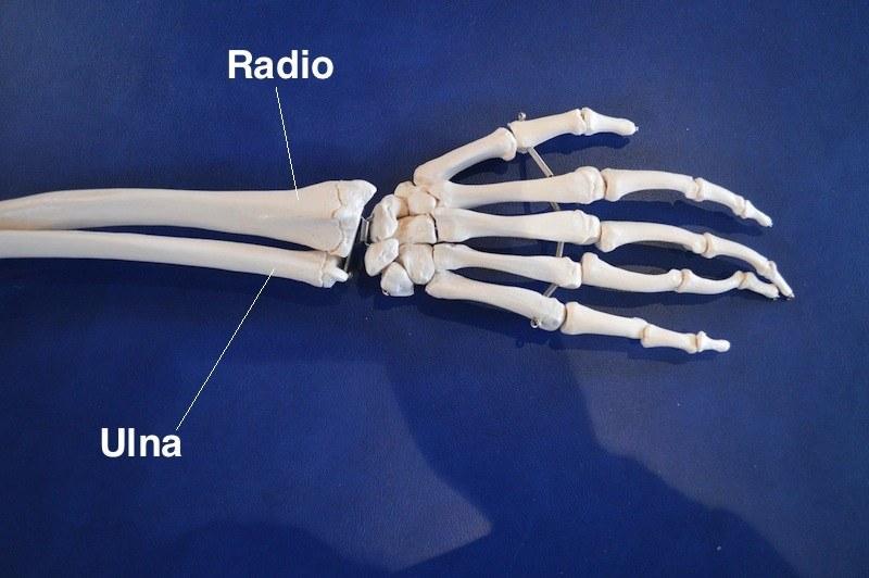 polso,radio,ulna,frattura,modellino,anatomia,mano,avambraccio,rottura
