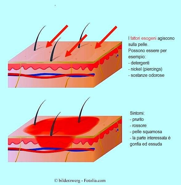 Sintomi dell'allergia