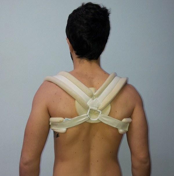 Tutore,8,frattura,clavicola,dolore,formicolio,spalla,mano,dita