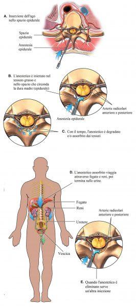 Anestesia epidurale,iniezione