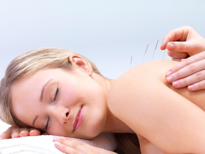 agopuntura,terapia,alterantiva,naturale,capsulite,spalla,dolore,cura,movimento