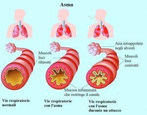 Asma,respirazione,alveoli,bronchi,polmoni,muscoli contratti