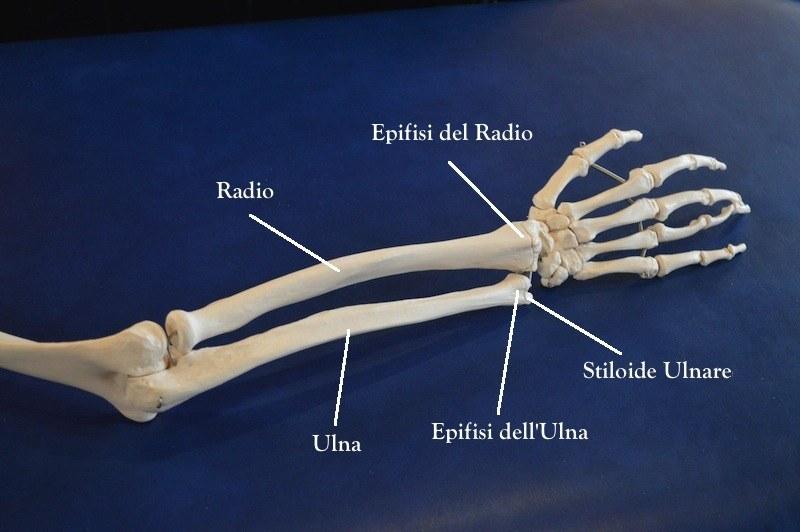 stiloide,epifisi,ulna,polso,avambraccio,mano,frattura,rottura