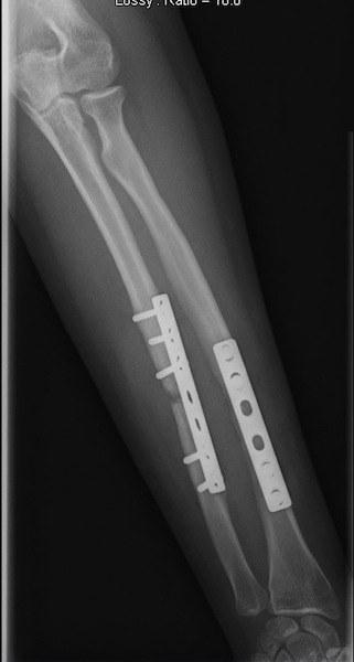 placca,viti,intervento,chirurgico,frattura,ulna,avambraccio,dolore