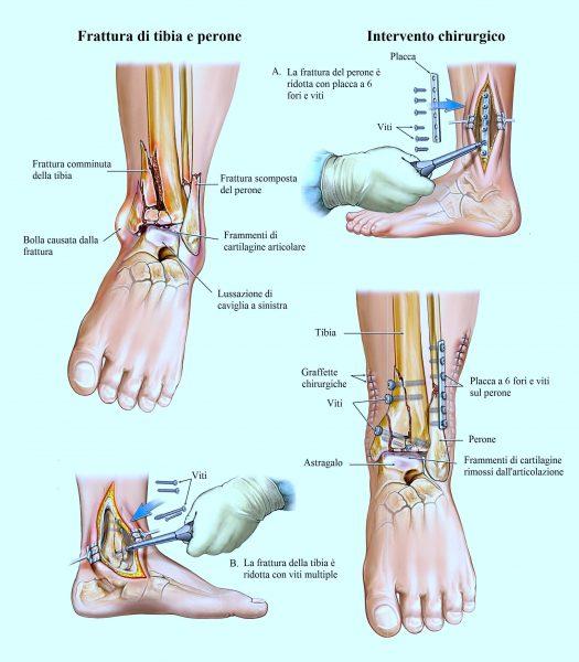 Frattura di tibia e perone,intervento chirurgico
