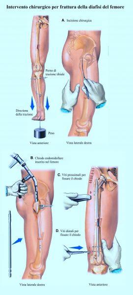 Frattura del femore,operazione chirurgica