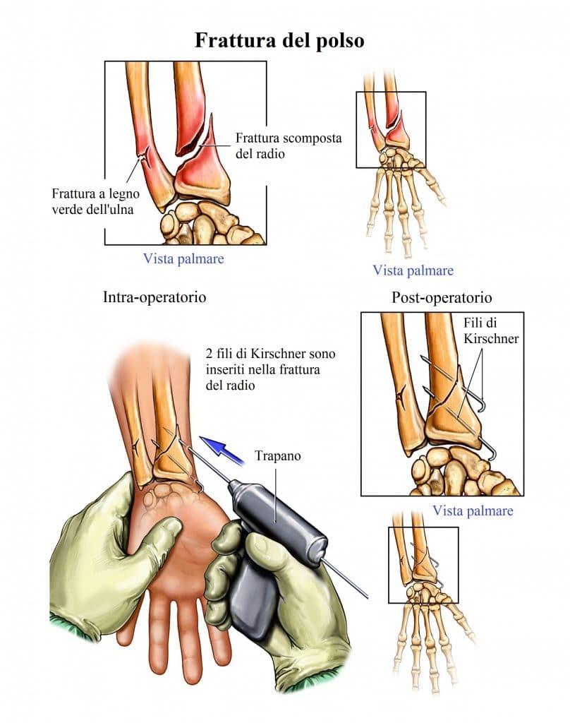 Frattura del radio,polso,fissazione percutanea,intervento chirurgico