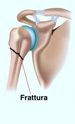 frattura,rottura,omero,prossimale,braccio,dolore